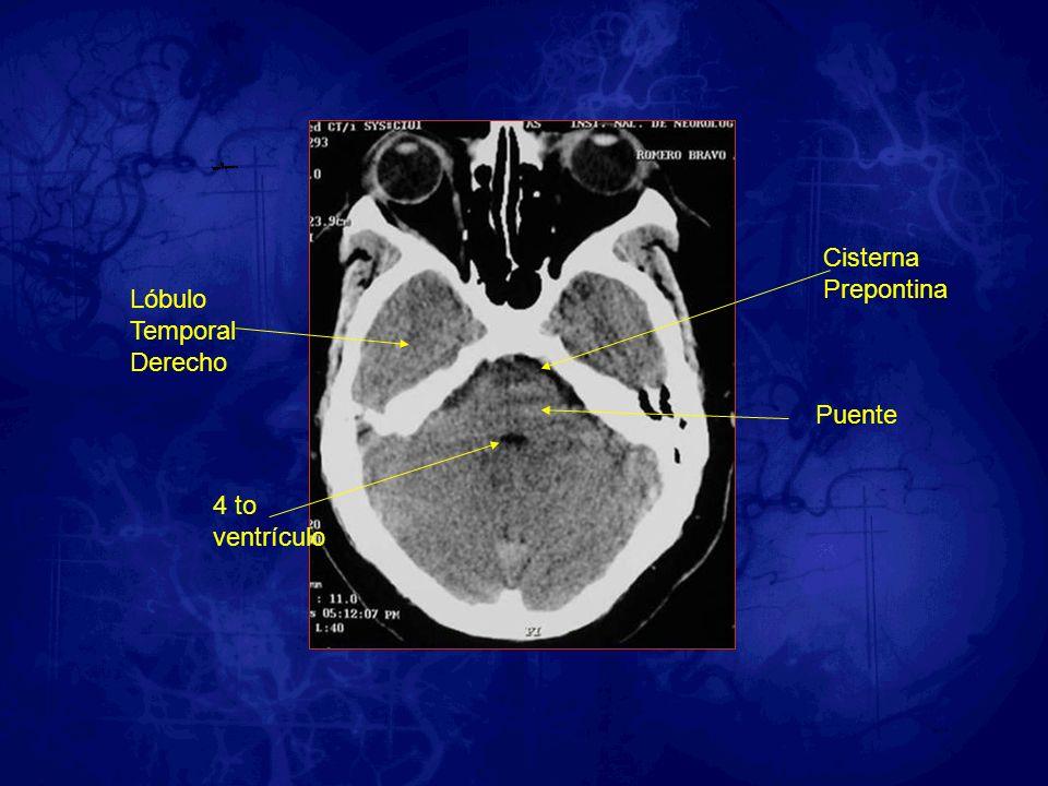 Cisterna Prepontina Lóbulo Temporal Derecho Puente 4 to ventrículo