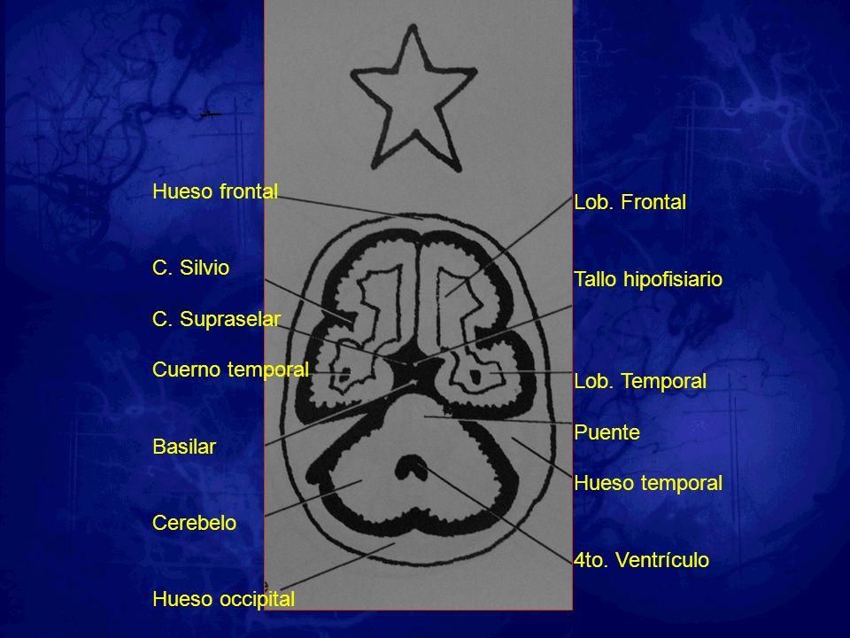 Hueso frontal C. Silvio. C. Supraselar. Cuerno temporal. Basilar. Cerebelo. Hueso occipital. Lob. Frontal.