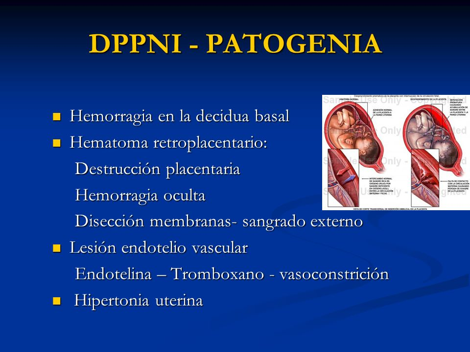 DPPNI - PATOGENIA Hemorragia en la decidua basal