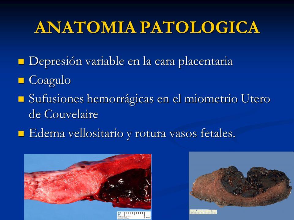 ANATOMIA PATOLOGICA Depresión variable en la cara placentaria Coagulo