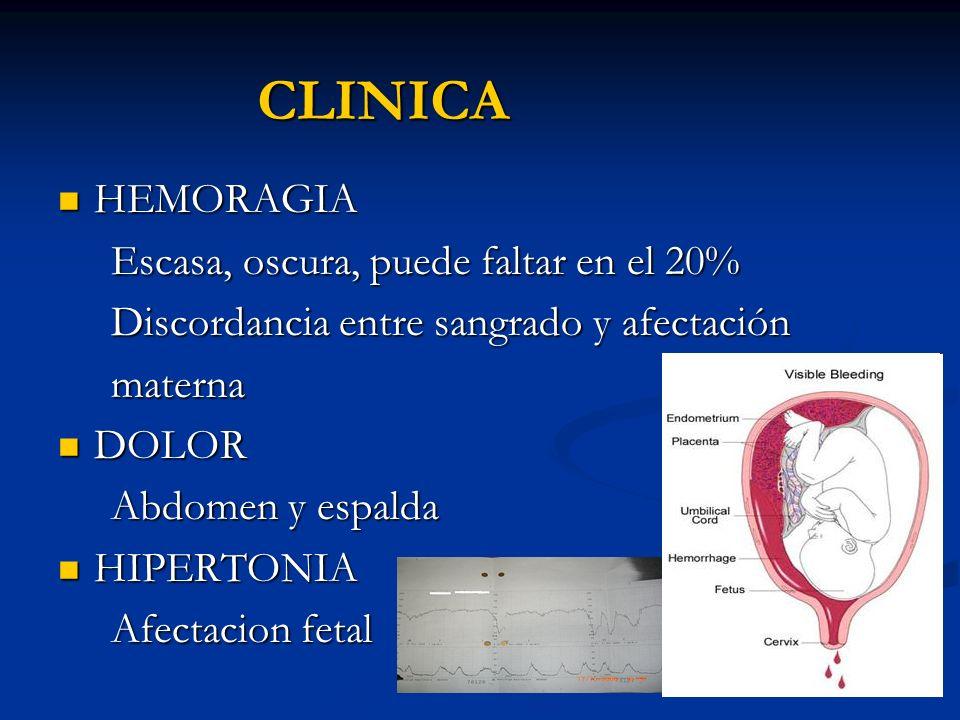 CLINICA HEMORAGIA Escasa, oscura, puede faltar en el 20%