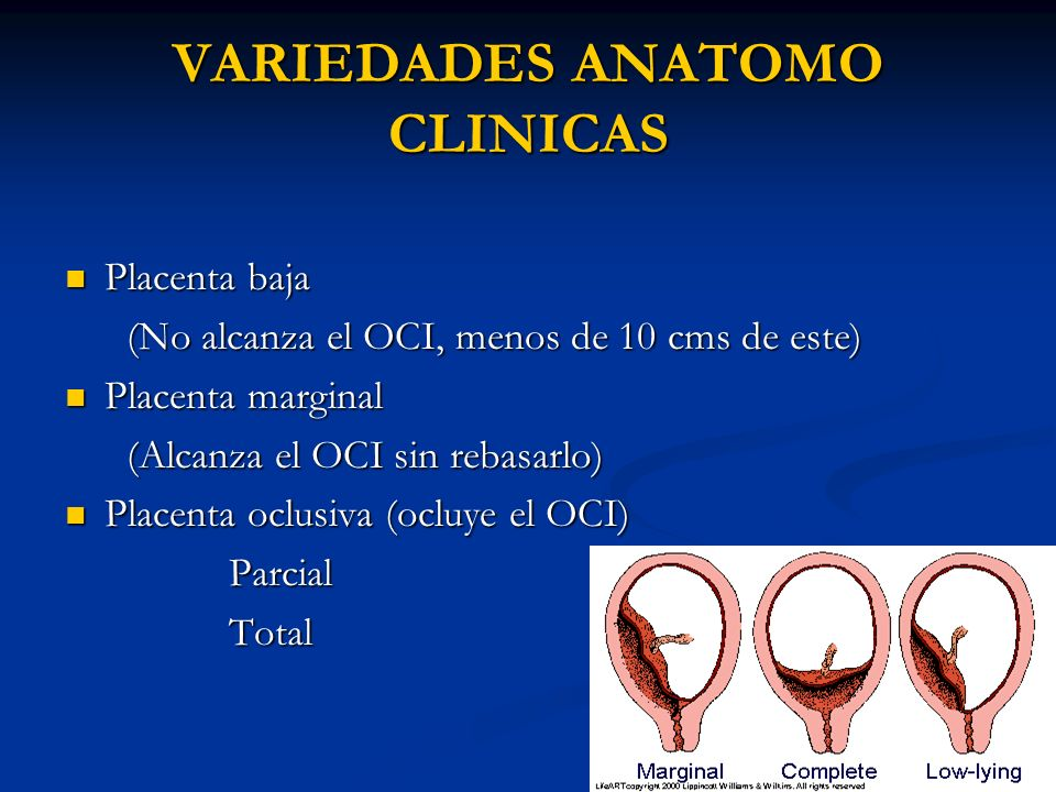 VARIEDADES ANATOMO CLINICAS