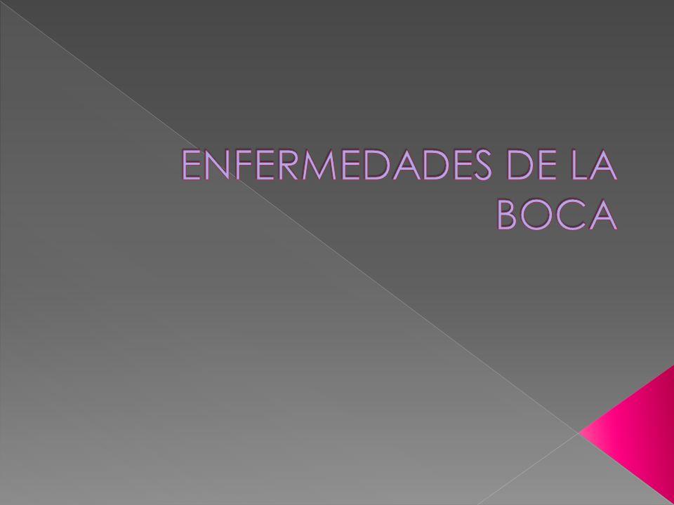 ENFERMEDADES DE LA BOCA