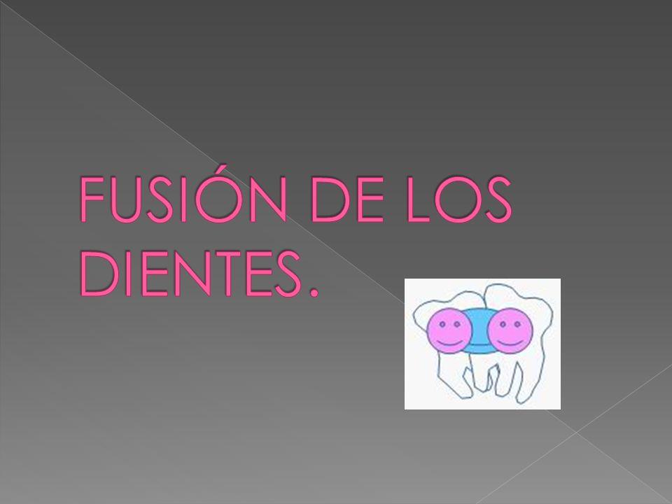 FUSIÓN DE LOS DIENTES.