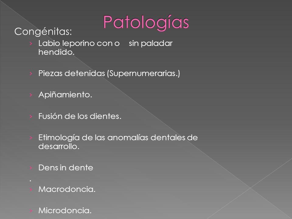 Patologías Congénitas: Labio leporino con o sin paladar hendido.