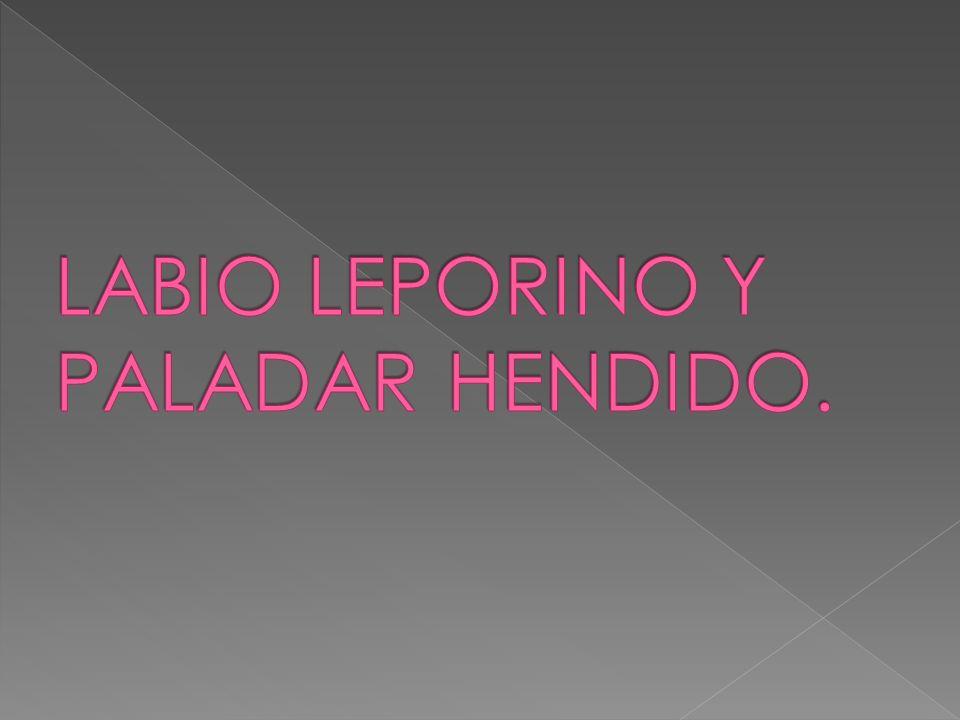 LABIO LEPORINO Y PALADAR HENDIDO.
