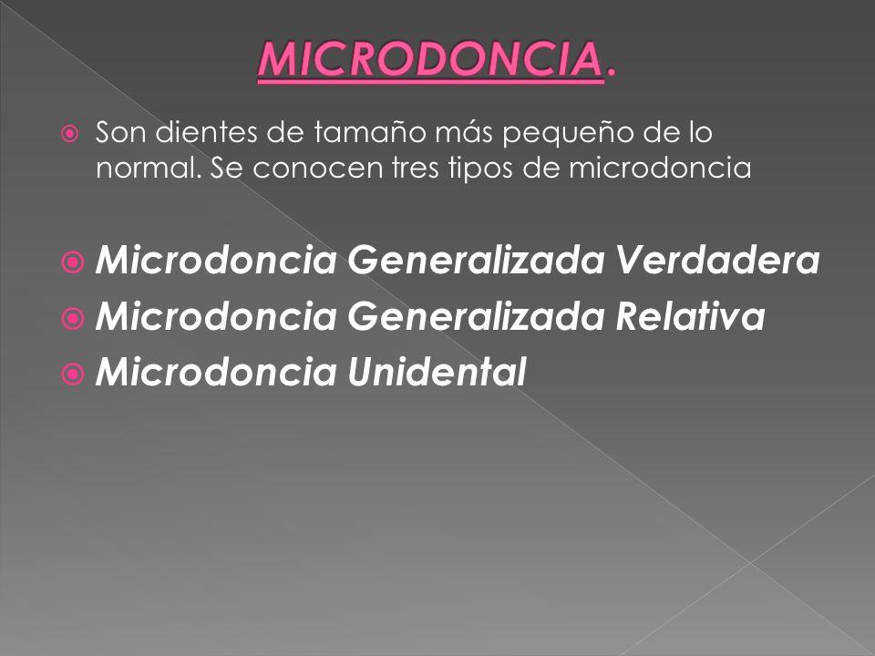 MICRODONCIA. Microdoncia Generalizada Verdadera