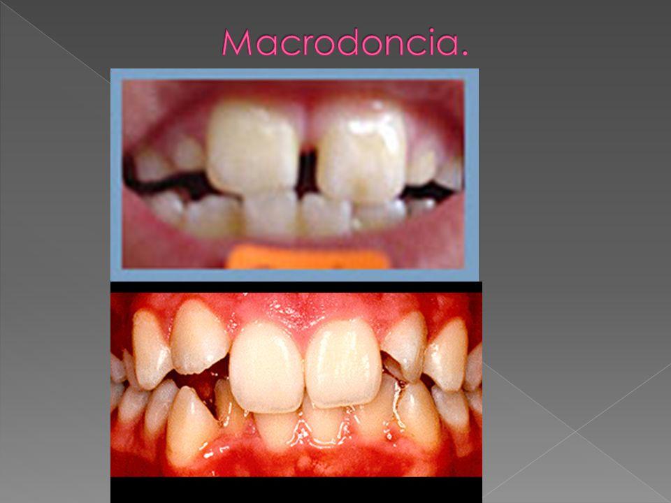 Macrodoncia.