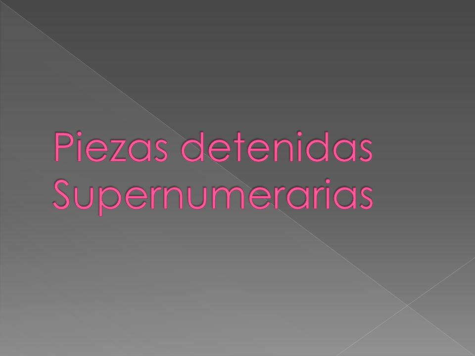 Piezas detenidas Supernumerarias
