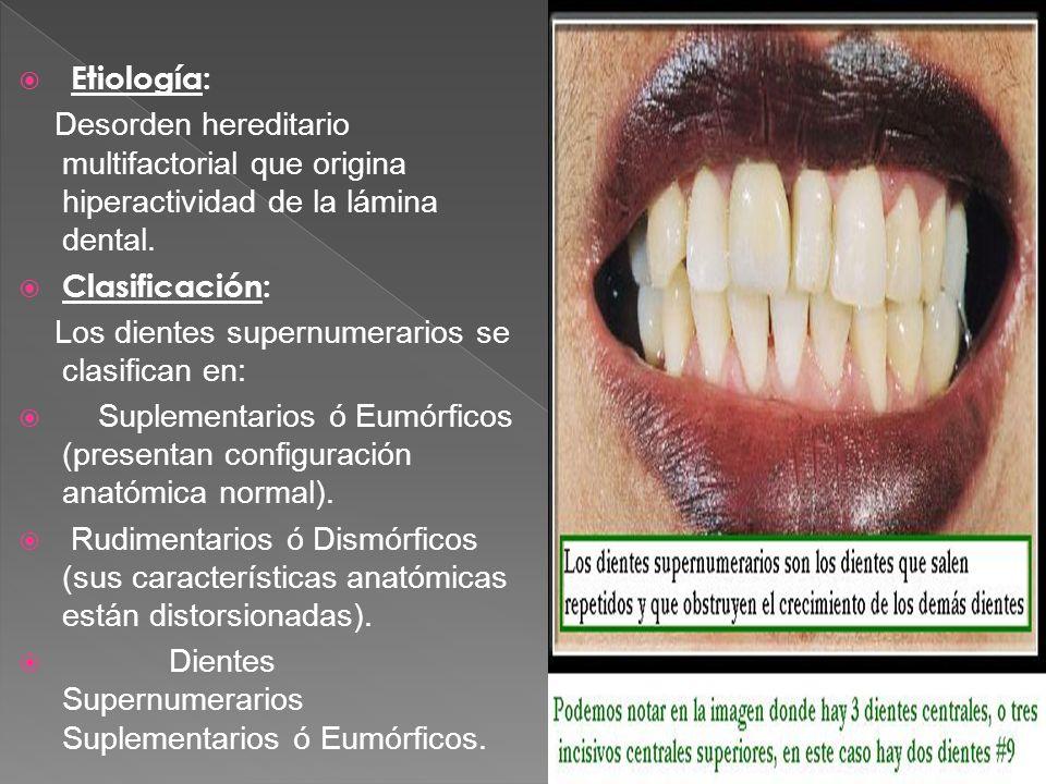 Etiología: Desorden hereditario multifactorial que origina hiperactividad de la lámina dental. Clasificación: