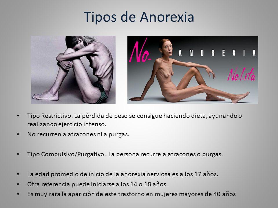Tipos de Anorexia Tipo Restrictivo. La pérdida de peso se consigue haciendo dieta, ayunando o realizando ejercicio intenso.