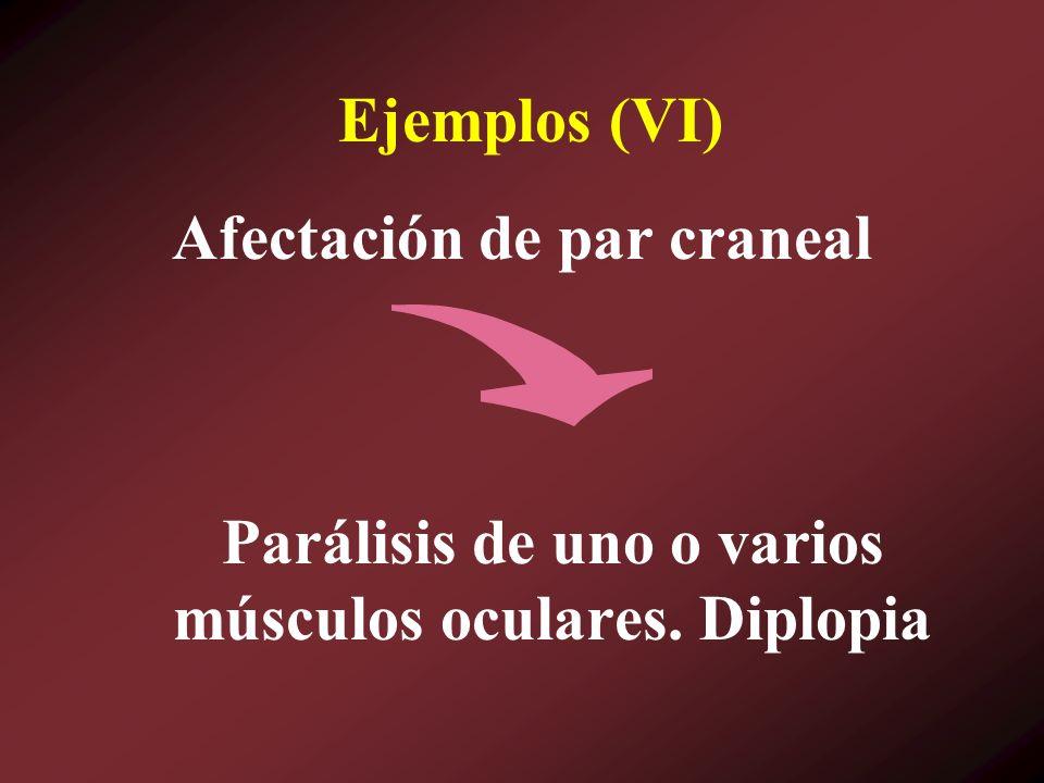 Parálisis de uno o varios músculos oculares. Diplopia