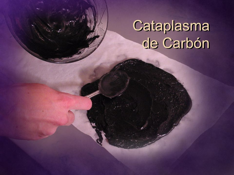 Cataplasma de Carbón