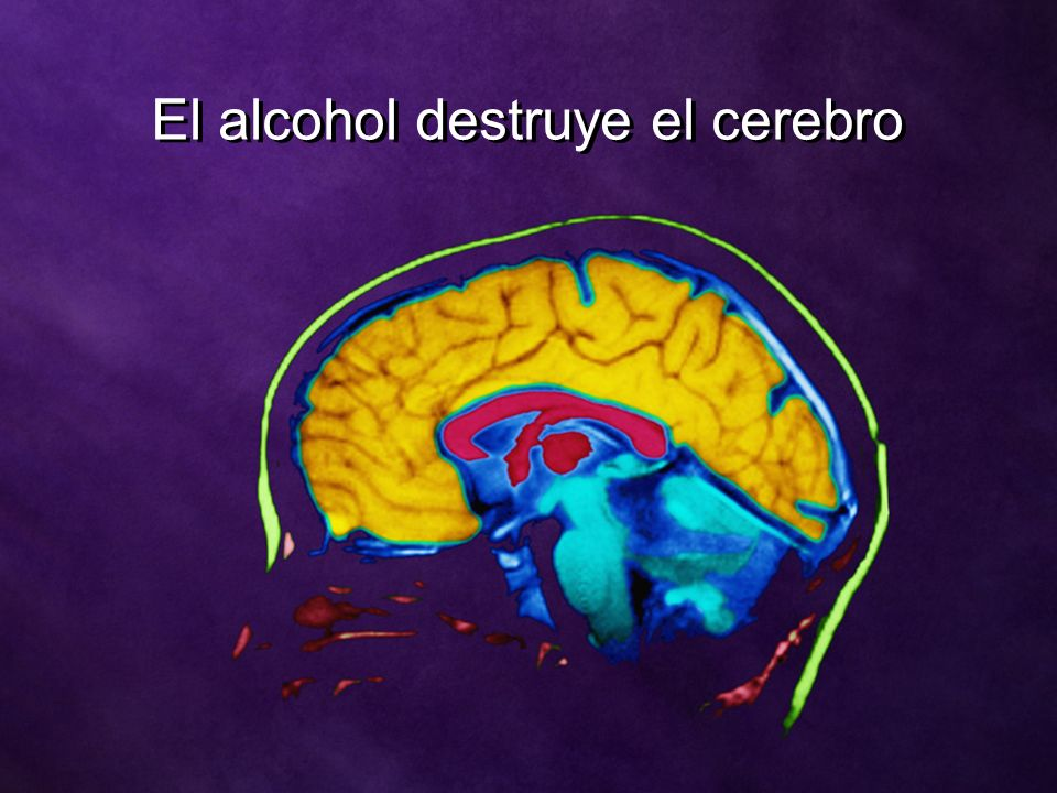 El alcohol destruye el cerebro