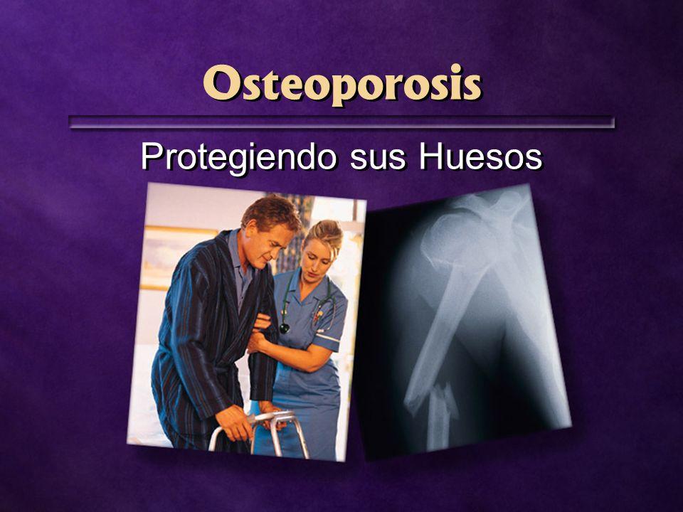 Osteoporosis Protegiendo sus Huesos