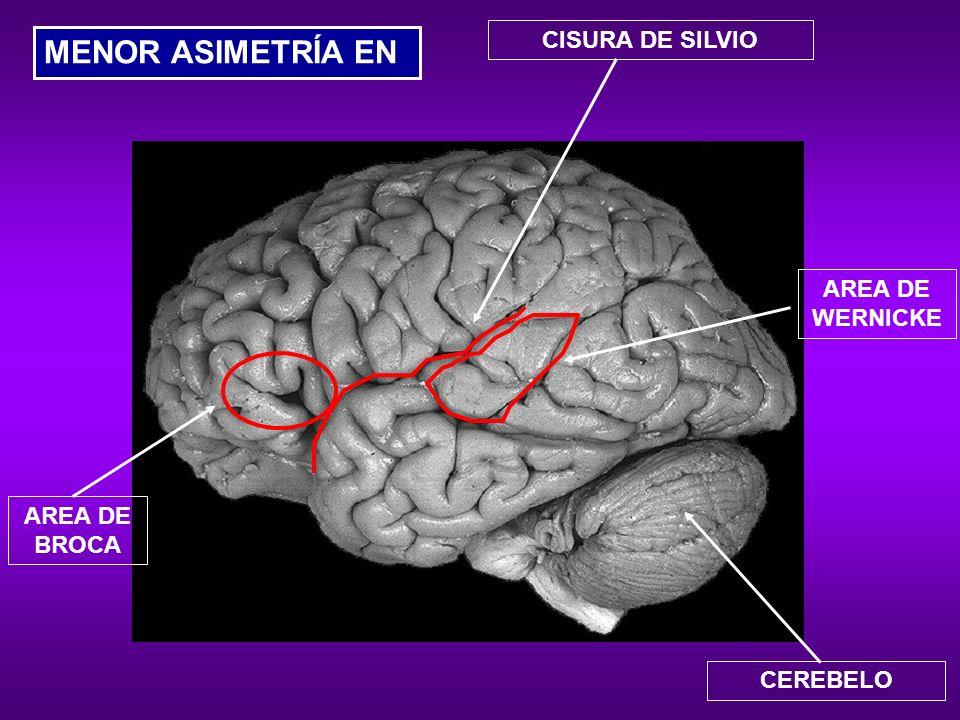 MENOR ASIMETRÍA EN CISURA DE SILVIO AREA DE WERNICKE AREA DE BROCA
