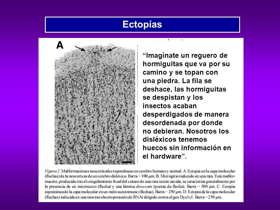 Ectopías