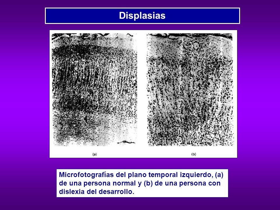 DisplasiasMicrofotografías del plano temporal izquierdo, (a) de una persona normal y (b) de una persona con dislexia del desarrollo.
