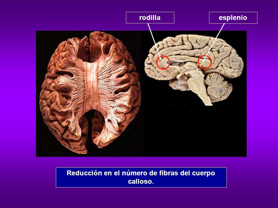 Reducción en el número de fibras del cuerpo calloso.