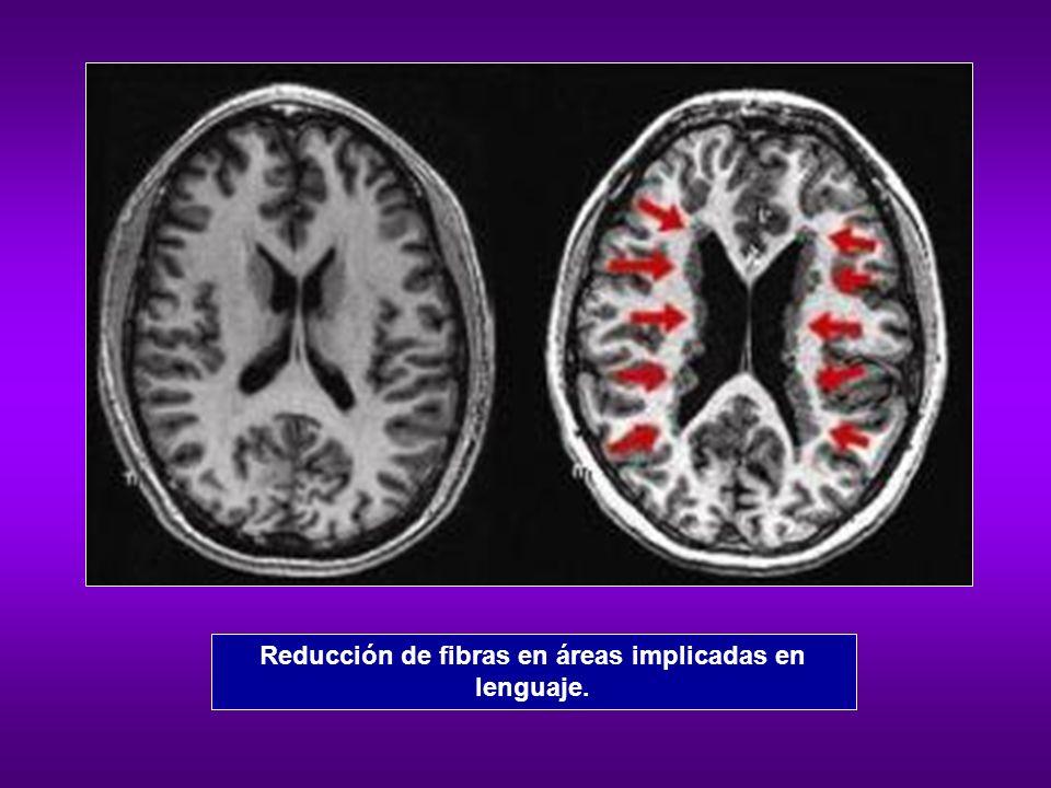 Reducción de fibras en áreas implicadas en lenguaje.