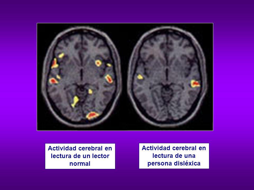 Actividad cerebral en lectura de un lector normal