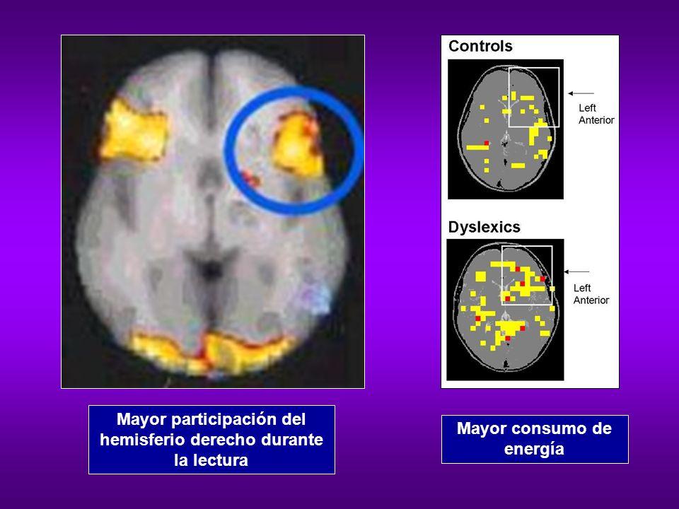 Mayor participación del hemisferio derecho durante la lectura