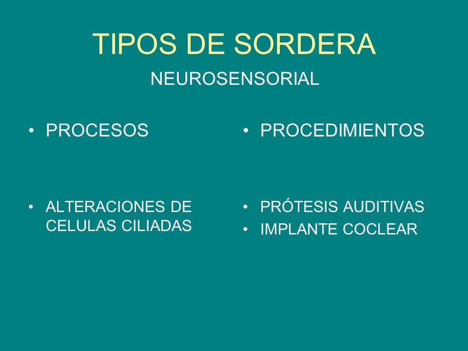 TIPOS DE SORDERA NEUROSENSORIAL PROCESOS PROCEDIMIENTOS