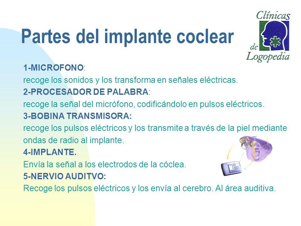 Partes del implante coclear