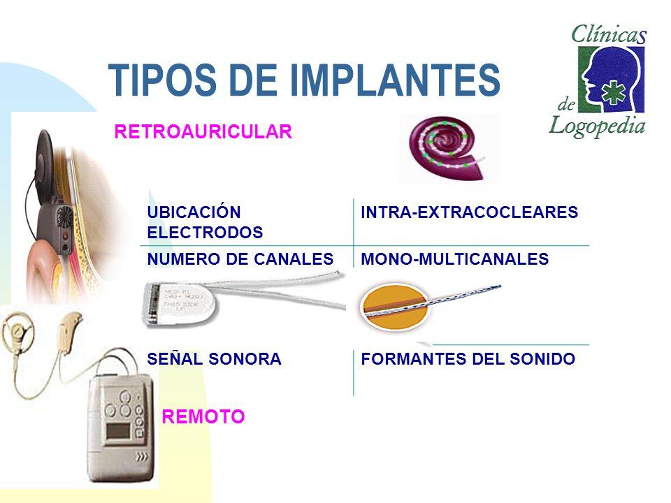 TIPOS DE IMPLANTES RETROAURICULAR REMOTO UBICACIÓN ELECTRODOS