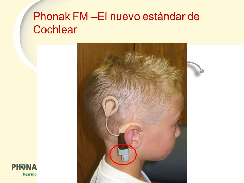 Phonak FM –El nuevo estándar de Cochlear
