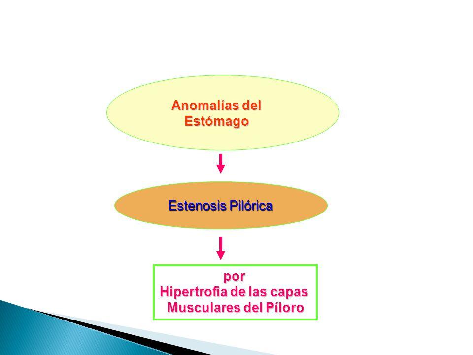 Hipertrofia de las capas