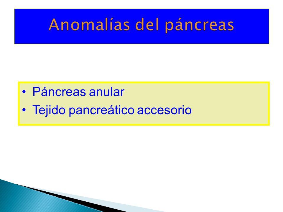 Anomalías del páncreas