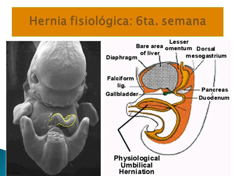 Hernia fisiológica: 6ta. semana