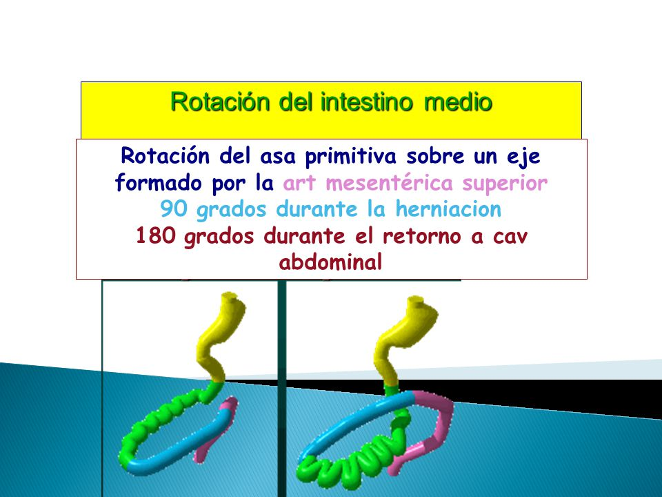 Rotación del intestino medio