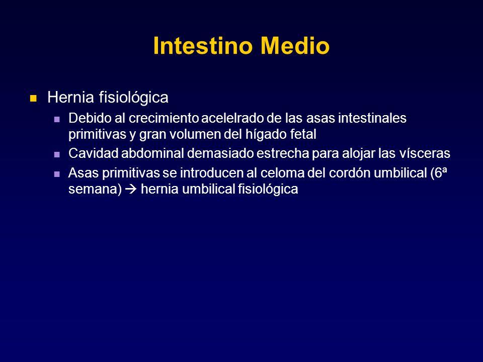 Intestino Medio Hernia fisiológica