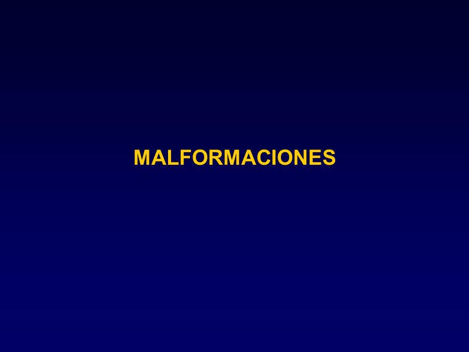 MALFORMACIONES