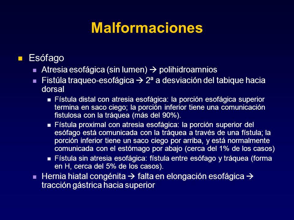 Malformaciones Esófago Atresia esofágica (sin lumen)  polihidroamnios