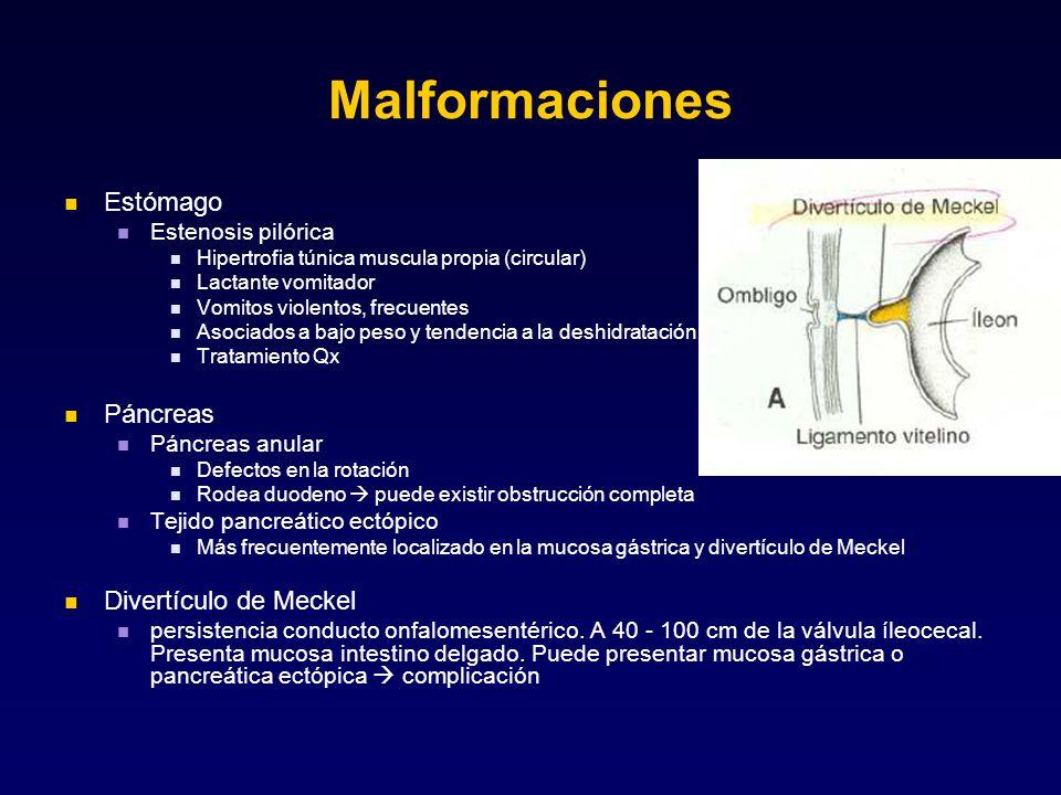 Malformaciones Estómago Páncreas Divertículo de Meckel