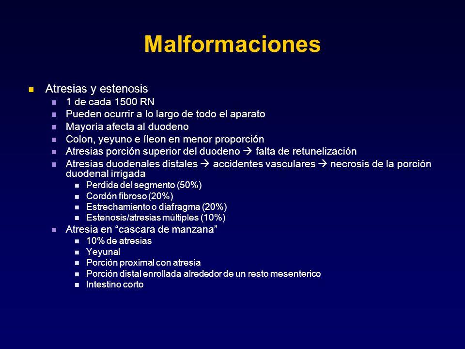 Malformaciones Atresias y estenosis 1 de cada 1500 RN