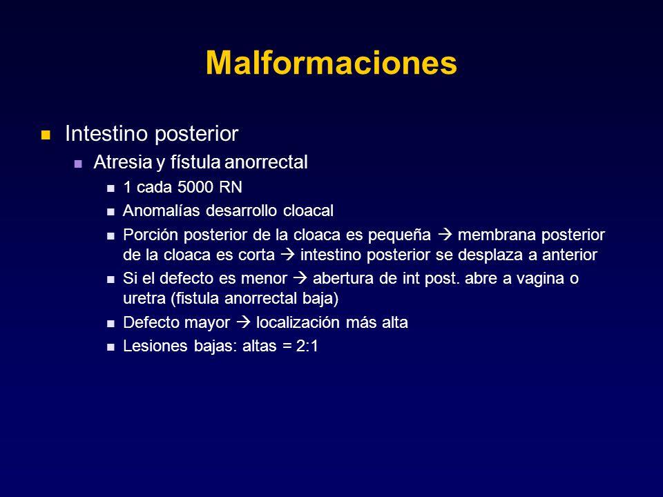 Malformaciones Intestino posterior Atresia y fístula anorrectal