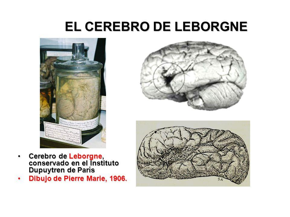 EL CEREBRO DE LEBORGNE Cerebro de Leborgne, conservado en el Instituto Dupuytren de París.