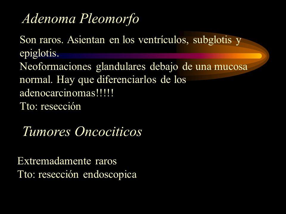Adenoma Pleomorfo Tumores Oncociticos