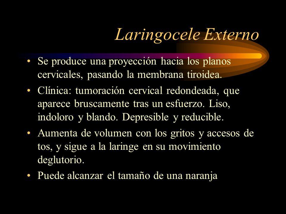 Laringocele Externo Se produce una proyección hacia los planos cervicales, pasando la membrana tiroidea.