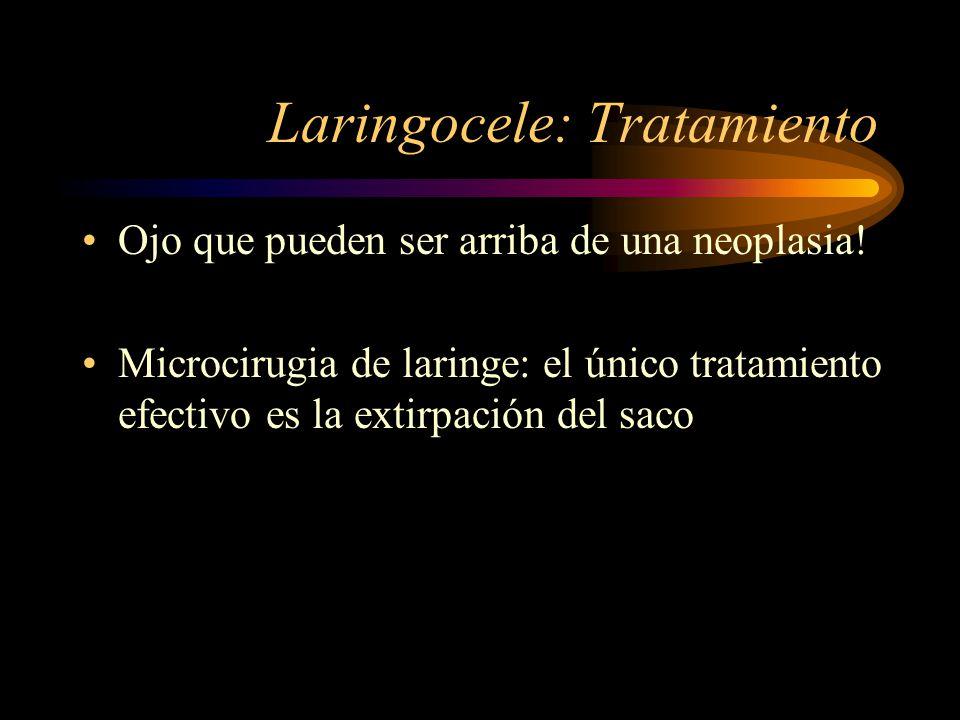 Laringocele: Tratamiento