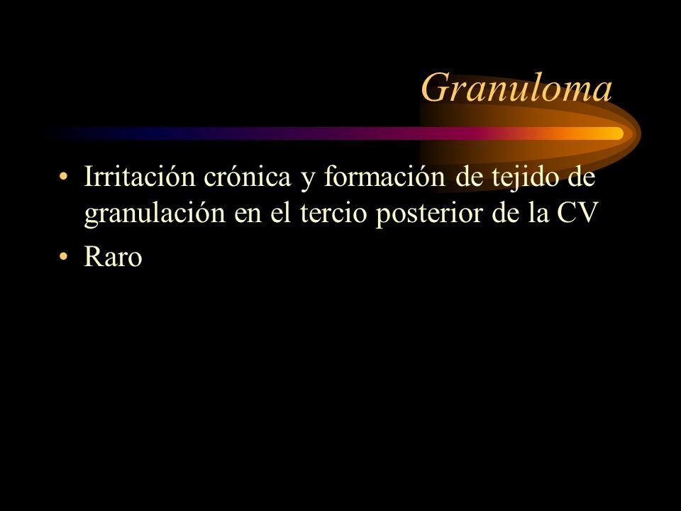 Granuloma Irritación crónica y formación de tejido de granulación en el tercio posterior de la CV.