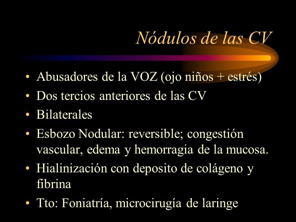 Nódulos de las CV Abusadores de la VOZ (ojo niños + estrés)