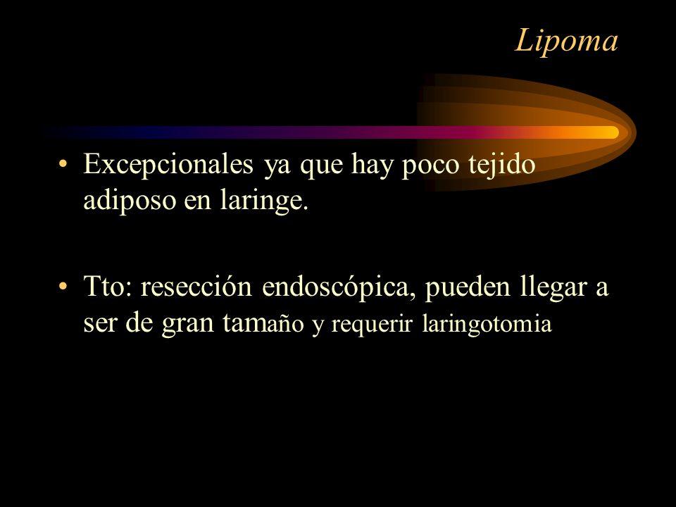 Lipoma Excepcionales ya que hay poco tejido adiposo en laringe.