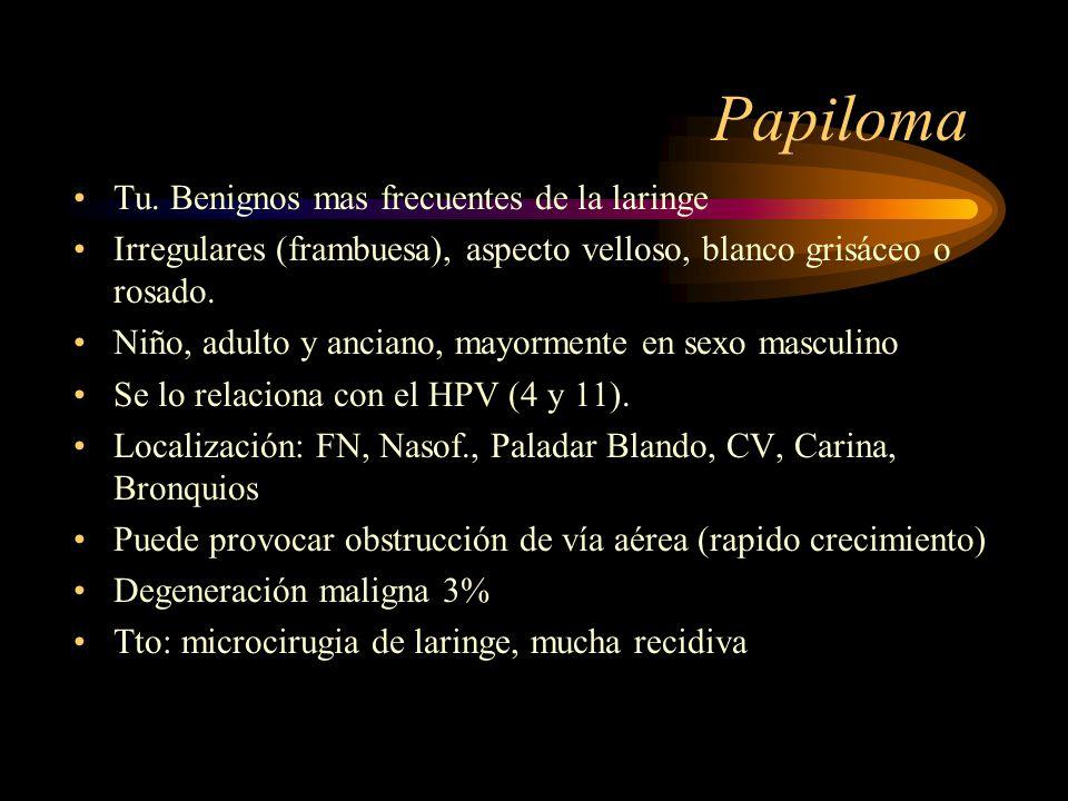 Papiloma Tu. Benignos mas frecuentes de la laringe