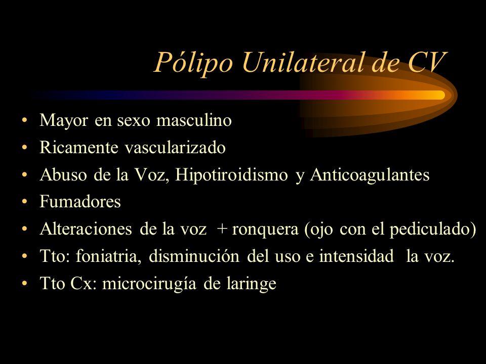 Pólipo Unilateral de CV