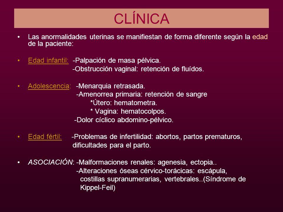 CLÍNICA Las anormalidades uterinas se manifiestan de forma diferente según la edad de la paciente: Edad infantil: -Palpación de masa pélvica.